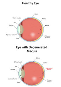 Image showing healthy eye and eye with degenerated macula