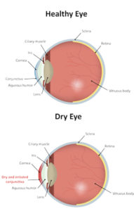 Diagram showing the difference between a healthy eye and dry eye